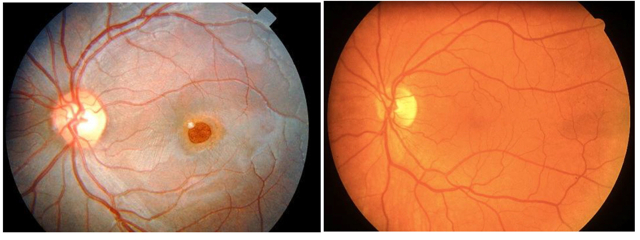 Left: Solar damaged macula; Right: Normal macula | Photos courtesy of Dr. Paul Gooch, SouthWest Vision, St. George, Utah