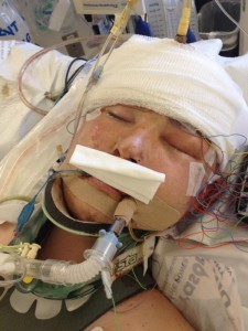 Ben Wolverton, 16, of St. George, remains in a coma after a longboarding accident in St. George in early April 2013, Las Vegas, April 7, 2013 | Photo courtesy of David Farland