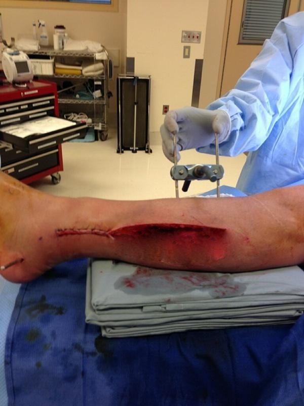Doctors work to save Ammon McNeely's leg after it was nearly severed in a BASE jumping accident at  Moab, Utah on Oct. 28. Photo Oct. 30, 2013 | Photo courtesy of Ammon McNeely, exposed wound blurred by St. George News out of deference to sensitive viewers
