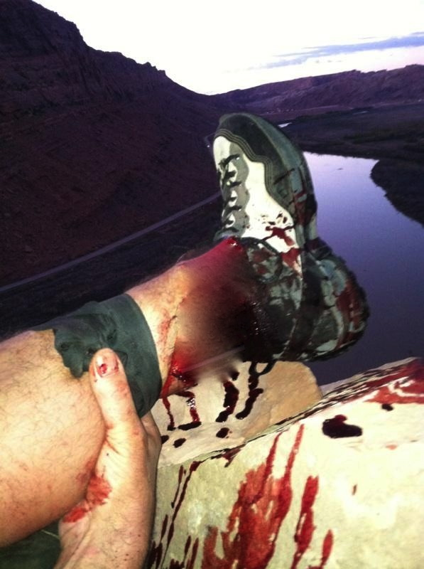 On a ledge after falling from a BASE jumping parachute mishap, Ammon McNeely photographs his leg, broken below the shin. Moab, Utah, Oct. 28, 2013 | Photo by and courtesy of Ammon McNeely, blurred by St. George News out of deference to sensitive viewers