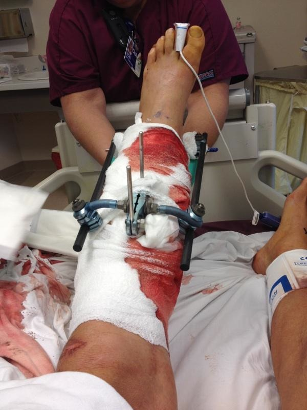 Ammon McNeely's leg after surgeries to save reattach it, after it was nearly severed in a BASE jumping accident at  Moab, Utah, Oct. 28, 2013 | Photo courtesy of Ammon McNeely, St. George News