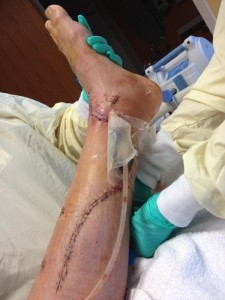 Ammon McNeely reconstructed leg, in the hospital before being released. Nov. 10, 2013 | Photo courtesy of Ammon McNeely, St. George News