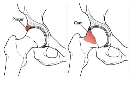 Hips affected by femoroacetabular impingement (FAI) | American Academy of Orthopedic Surgeons
