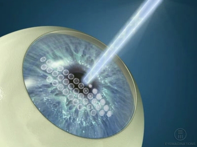 A LASIK procedure| Image courtesy of Dixie Ophthalmic Specialists at Zion Eye Institute