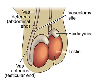 Vasectomy diagram, St. George, Utah, undated | Image courtesy of Dr. Taylor, St. George Health and Wellness