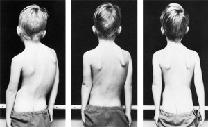 From left: Image 1, 5-year-old boy, scoliosis resulting from polio; image 2, after 3 weeks of intensive Schroth treatment; image 3, after 8 weeks of Schroth scoliosis exercise therapy| Photo courtesy of Schroth Method. St. George News | Click to enlarge image