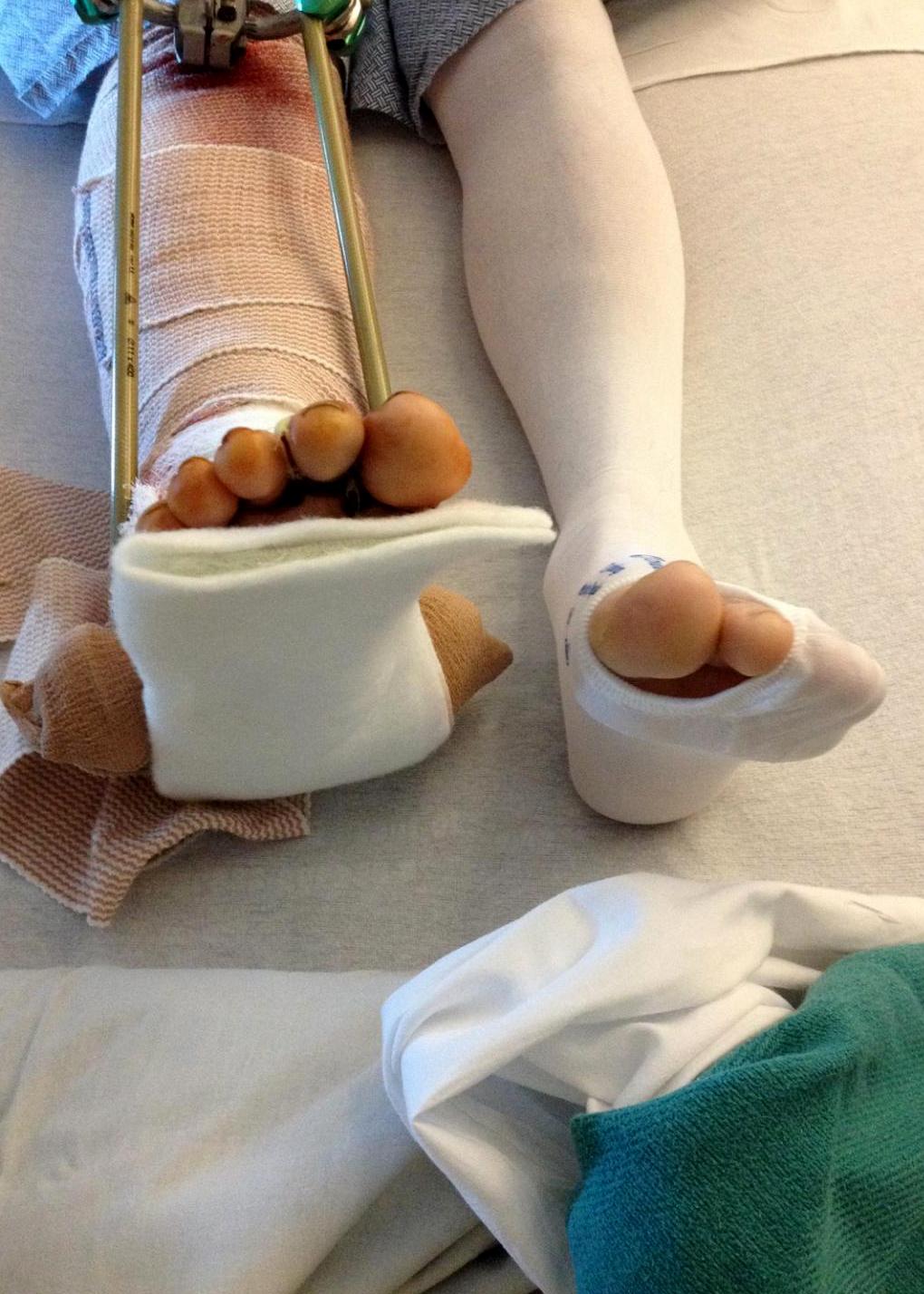 Hyrum Zerkle's leg after first surgery, Valley View Medical Center, Cedar City, Utah, March 27, 2015 | Photo courtesy of Hyrum Zerkle, St. George News