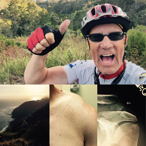 """A compilation of photos including Jody Rich giving a """"thumbs-up"""" for the camera , location not specified,  circa July 13-23, 2015; an ocean view - location not specified, circa July 13-23, 2015; a picture of Rich's broken clavicle, circa July 23, 2015;  and an X-ray from after his crash, circa July 23, 2015 