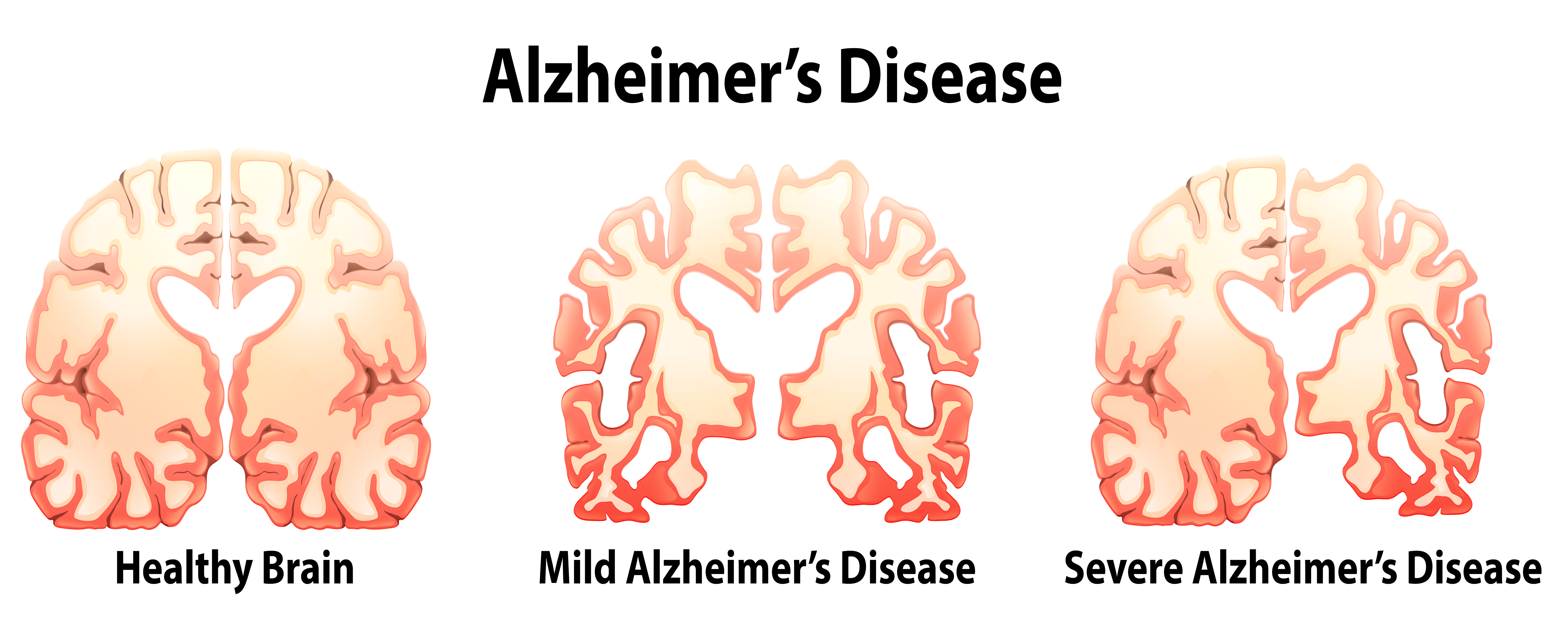alzheimer s dementia and especially hard time Agraphia refers to difficulties  it is hard for people who have alzheimer's disease  remember that people with dementia may have a hard time understanding.