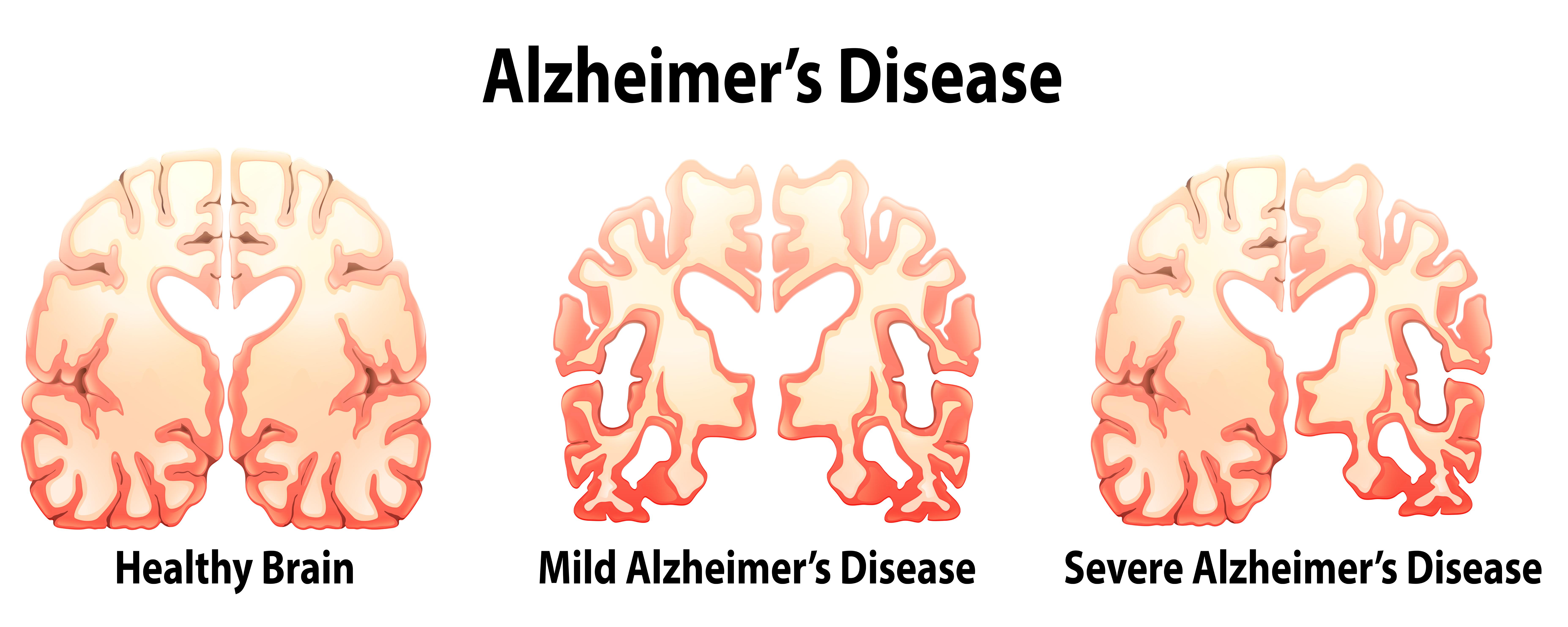 Illustration of Alzheimer's Disease | Stock image St. George News