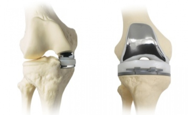 Partial vs. total knee replacement implants | Image courtesy of Coral Desert Orthopaedics, St. George News