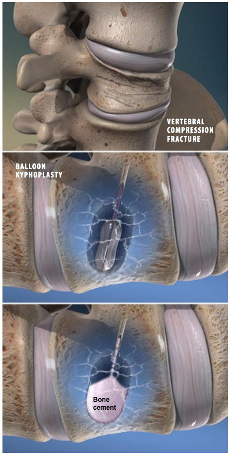 This series of photos shows steps in the procedure of kyphoplasty (balloon vertebroplasty) | Photos by www.viewmedica.com / Swarm Interactive courtesy of Southwest Spine and Pain Center, St. George News