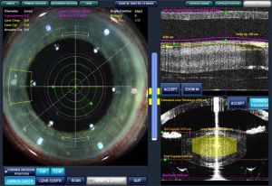 The St. George Eye Center offers a variety of options including laser-assisted cataract surgery to remove the cataract and correct astigmatism and ultimately improve vision. Location and date not specified | Photo courtesy of the St. George Eye Center