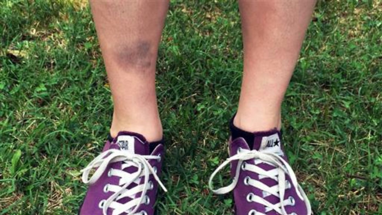 This July 8, 2016, photo provided by Justin Harrison shows the bruised shin of Lindsay Plunkett, a 23-year-old waitress in Asheville, N.C., after she tripped over a cinder block that had been used as a doorstop while playing Pokemon Go, an addictive new game based on cute Nintendo characters like Squirtle and Pikachu. Just days after being made available in the U.S., the mobile game has become the top-grossing app in the App Store. Players have reported wiping out in a variety of ways as they wander the real world – eyes glued to their smartphone screens – in search of digital monsters. Ashville, North Carolina, July 8, 2016 | Photo by Justin Harrison via The Associated Press, St. George News