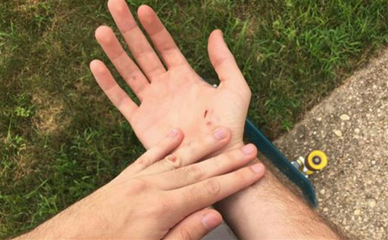 A photo taken and provided by Mike Schultz shows injuries he received when he crashed his skateboard while playing Pokemon Go, an addictive new game based on cute Nintendo characters like Squirtle and Pikachu, near his home on Long Island in New York. Just days after being made available in the U.S., the mobile game has jumped to become the top grossing app in the App Store. And players have reported wiping out in a variety of ways as they wander the real world – eyes glued to their smartphone screens – In search of digital monsters, Long Island, New York, July 8, 2016 | Photo by Mike Schultz via the Associated Press, St. George News